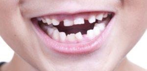 К чему снятся выпавшие зубы, значение сна с фото