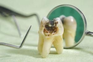 К чему снятся гнилые зубы, значение сна с фото