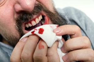 Сон о выпадении зубов с кровью